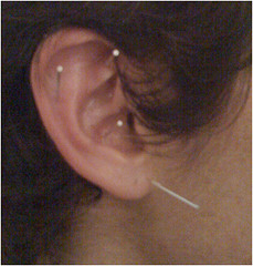 ear acupuncture by perfecto insecto